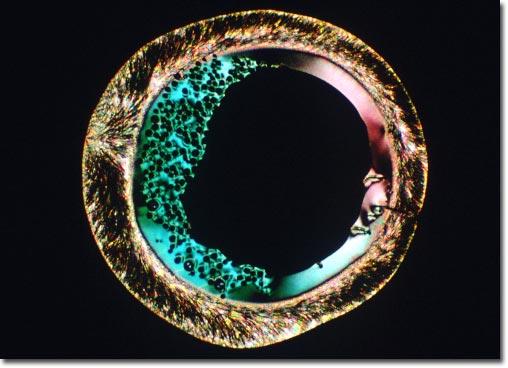 vitamin c photomicrograph